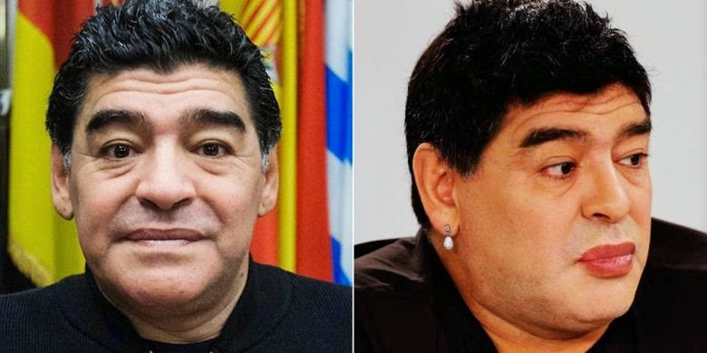 Maradona plastische chirurgie